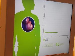 Herzfrequenz sichtbar gemacht